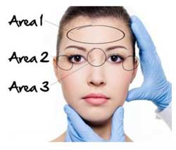 Areas of Botox Injections