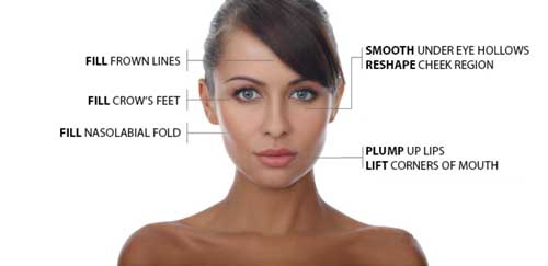 Areas for Fillers