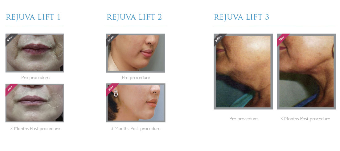 Hardwick Clinic | Treatments | Non-surgical Facelift with PDO Threads