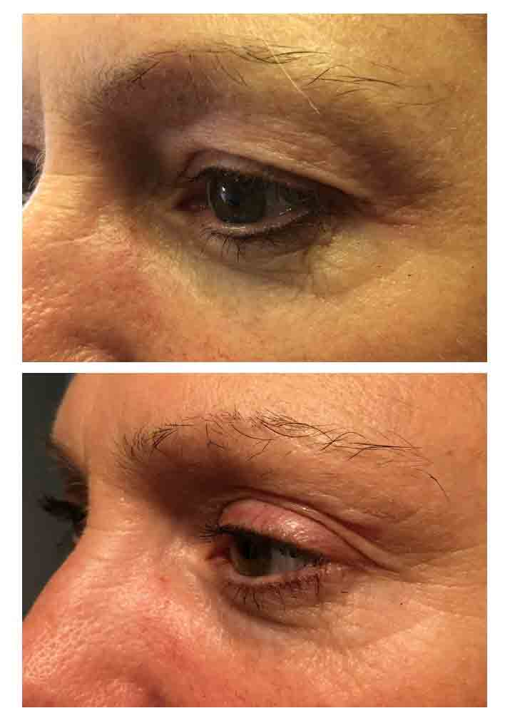 Blepharoplasty Example
