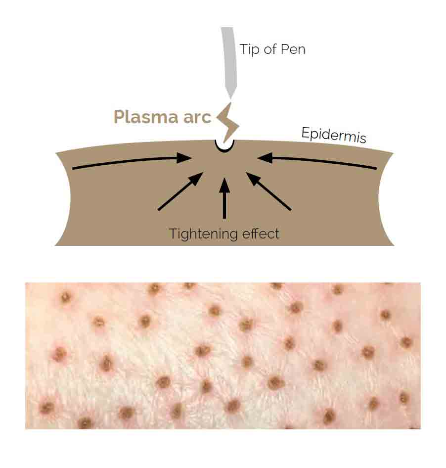 Plasma Pen Skin Ablation and a Reduction Grid