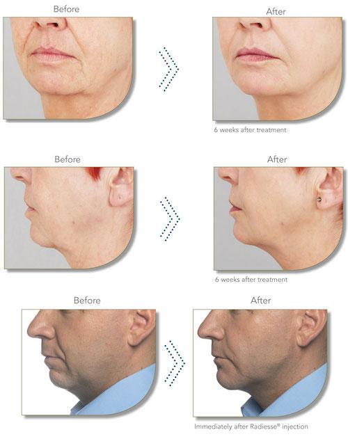 Hardwick Clinic | Treatments | Dermal Fillers
